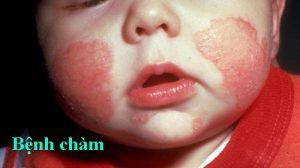 Bệnh chàm xảy ra ở trẻ