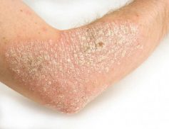 Triệu chứng bệnh vẩy nến