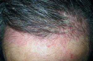 Biểu hiện bệnh vảy nến da đầu