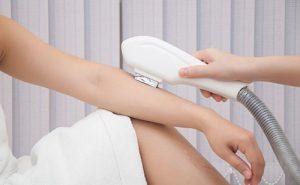Cách triệt lông tay vĩnh viễn