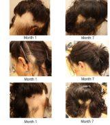 Chưa bệnh rụng tóc hiệu quả