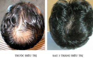 Chữa bệnh tóc rụng từng mảng