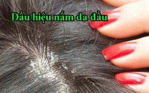 Dấu hiệu nấm da đầu