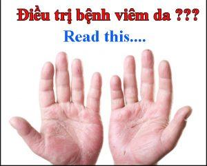Điều trị bệnh việm da