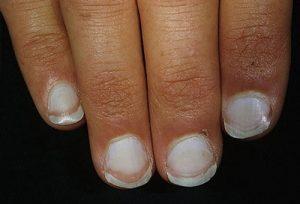 Móng tay chân chuyển trắng là 1 phần triệu chứng bệnh vảy nến