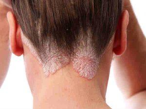 Nâm da đầu