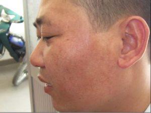 Nấm da mặt