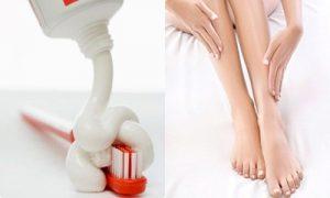 Thuốc trị lông chân có thực sự tốt