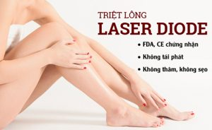 Triệt lông vĩnh viễn bằng công nghệ Laser Diode