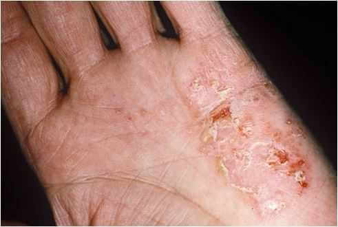 Bệnh chàm khô ở tay và mặt