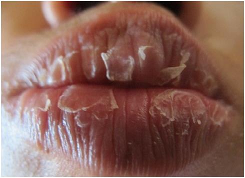 Bệnh chàm môi và cách chữa trị