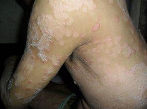 Bệnh nấm vảy nến