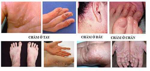 cách chữa bệnh chàm tổ đỉa