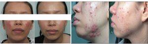Điều trị viêm da dị ứng ở mặt
