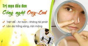 Phương pháp trị mụn trứng cá hiệu quả