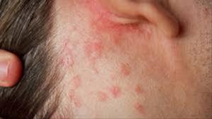 Nhận biết viêm da dị ứng để có cách điều trị tốt nhất