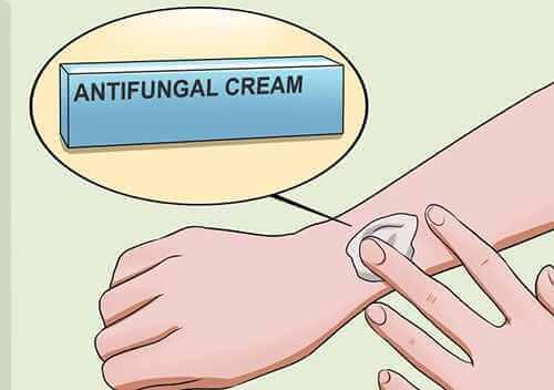 thuốc đặc trị hắc lào
