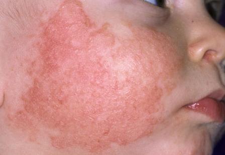 Bệnh viêm da ở trẻ sơ sinh và cách điều trị hiệu quả