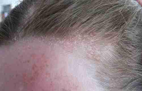 Bệnh chàm da đầu và cách chữa chàm da đầu