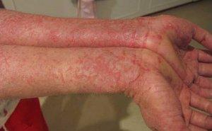 bệnh viêm da dị ứng