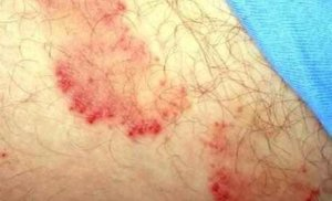 điều trị bệnh nấm hắc lào