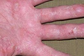 nấm tổ đỉa là bệnh gì