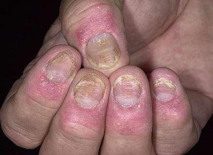 Vảy nến móng tay và cách chữa bệnh vảy nến ở móng tay