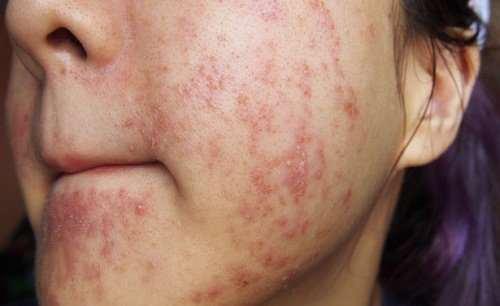 Viêm da mụn mủ và cách điều trị viêm da mủ