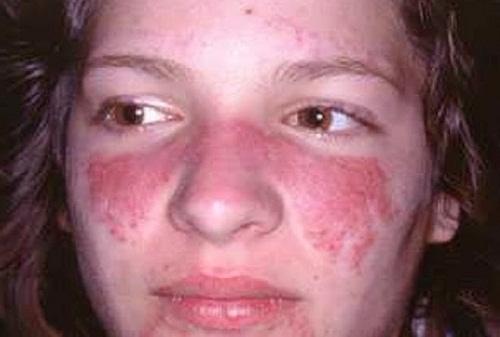 bệnh viêm da tiếp xúc dị ứng