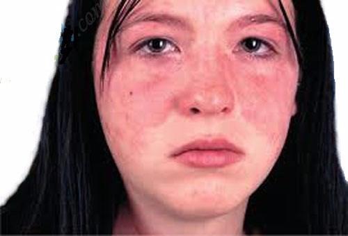 Bệnh viêm da tiếp xúc và cách chữa