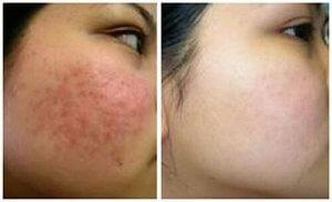 cách chữa viêm da mặt hiệu quả