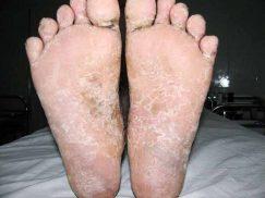 bệnh viêm da cơ địa ở chân