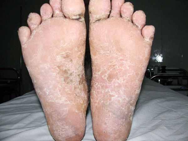 Bệnh viêm da cơ địa ở chân là gì