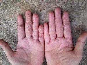 bệnh viêm da cơ địa tay