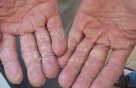 bệnh viêm da cơ địa ở tay