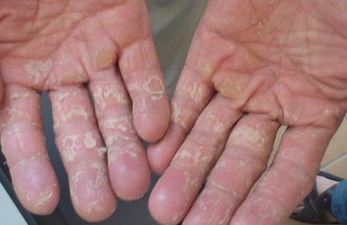 Bệnh viêm da cơ địa ở tay là gì