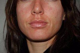bệnh chàm da mặt