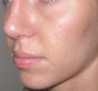 bệnh viêm da dầu ở mặt