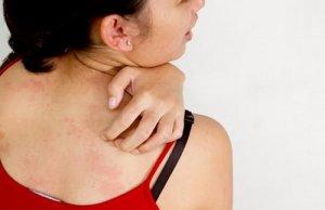 bệnh viêm da dị ứng tiếp xúc