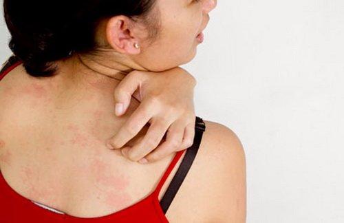 Bệnh viêm da dị ứng tiếp xúc và cách điều trị hiệu quả