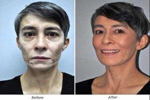 cách chữa lang mặt hiệu quả