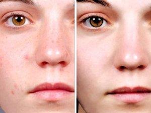cách chữa viêm da dị ứng ở mặt
