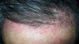nấm vảy nến da đầu