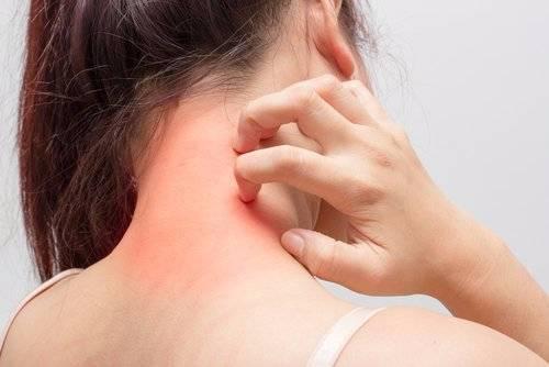 Triệu chứng viêm da dị ứng nhận biết thế nào