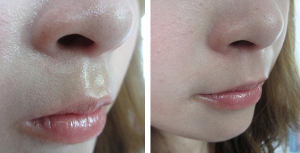 Viêm da nhờn và cách chữa viêm da nhờn trên mặt