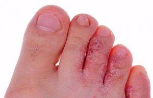 bệnh nấm da chân