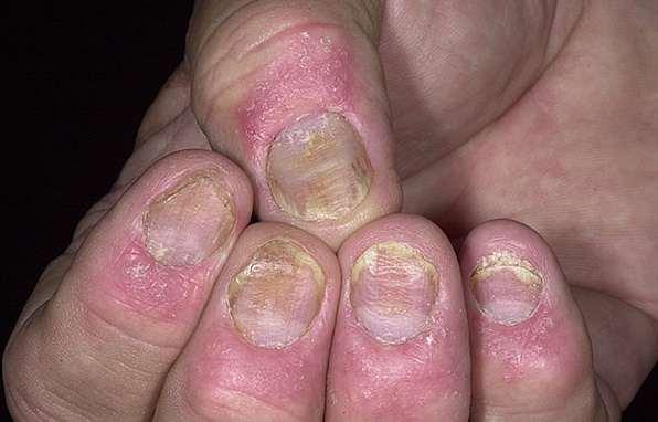 bệnh nấm móng tay