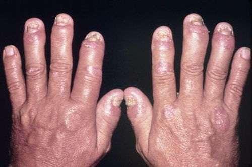 Bệnh vảy nến khớp điều trị như thế nào