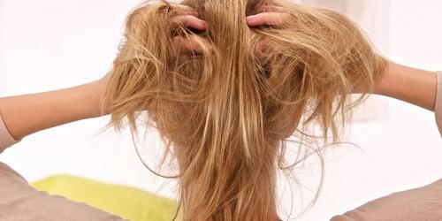Cách chữa bệnh vẩy nến da đầu hiệu quả