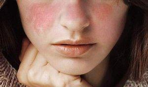 cách chữa nấm da mặt hiệu quả